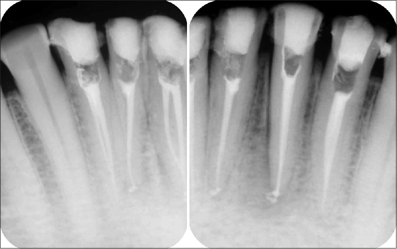 Figure 11: Obturation radiographs