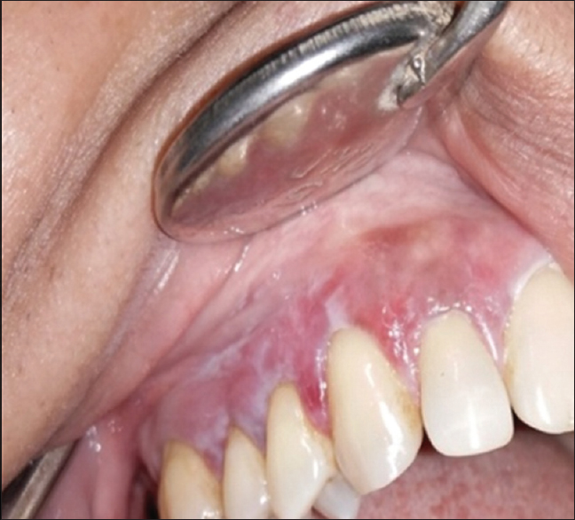 Figure 2: Clinical photograph of gingival lesions (Right maxillary gingiva)